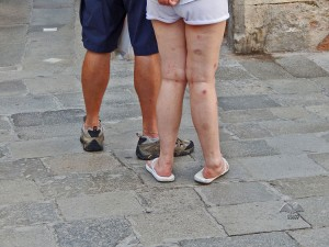 Mosquito bite marks on Venetian tourists